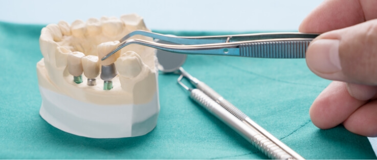 implanty radom