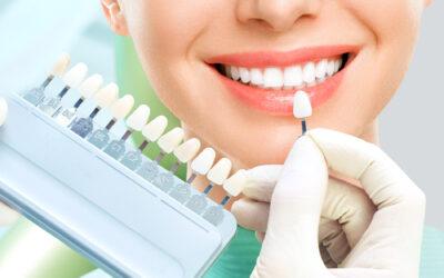 Zalecenia po wybielaniu zębów